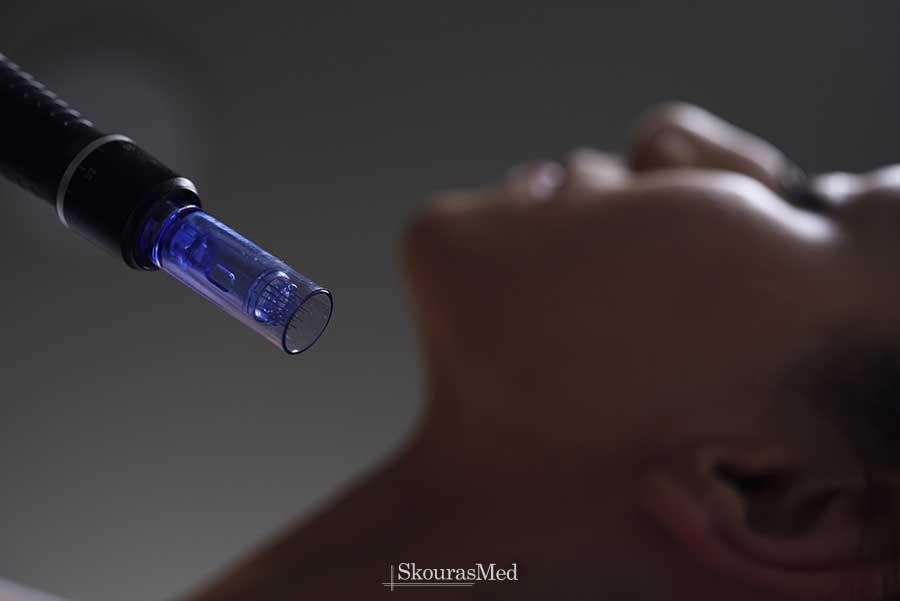 Τι είναι το Dermapen - το μαγικό στυλό