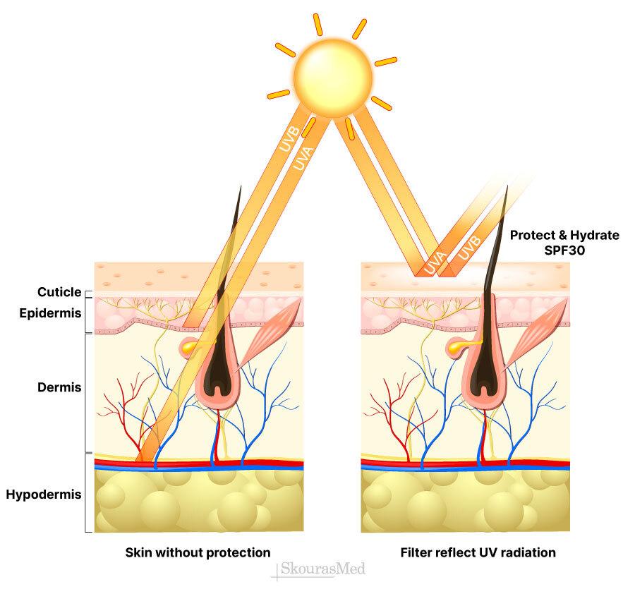 Τα είδη της ηλιακής ακτινοβολίας και η επίδραση στο δέρμα