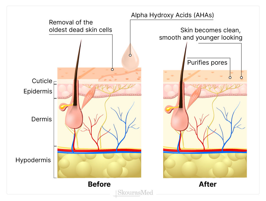 Alpha Hydroxy Acids as Exfoliant Agent