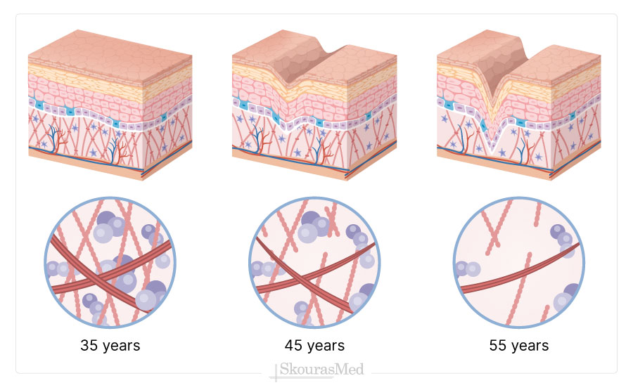 The Aging Skin